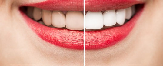 Teeth Whitening Ogden